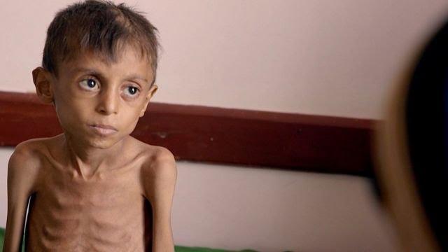 A severely malnourished child in Yemen